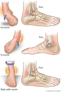 ankle-injury-2